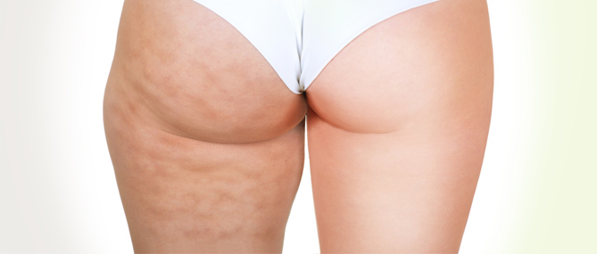 Non-Surgical vs Surgical Treatments For Cellulite