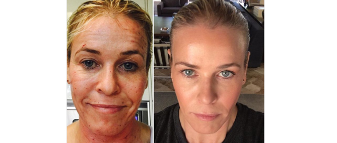 Celebrities Raving about our Profractional™ Laser!!