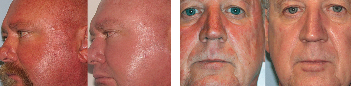 How to treat Rosacea?