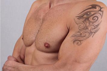 Tattoo Removal - Dermology